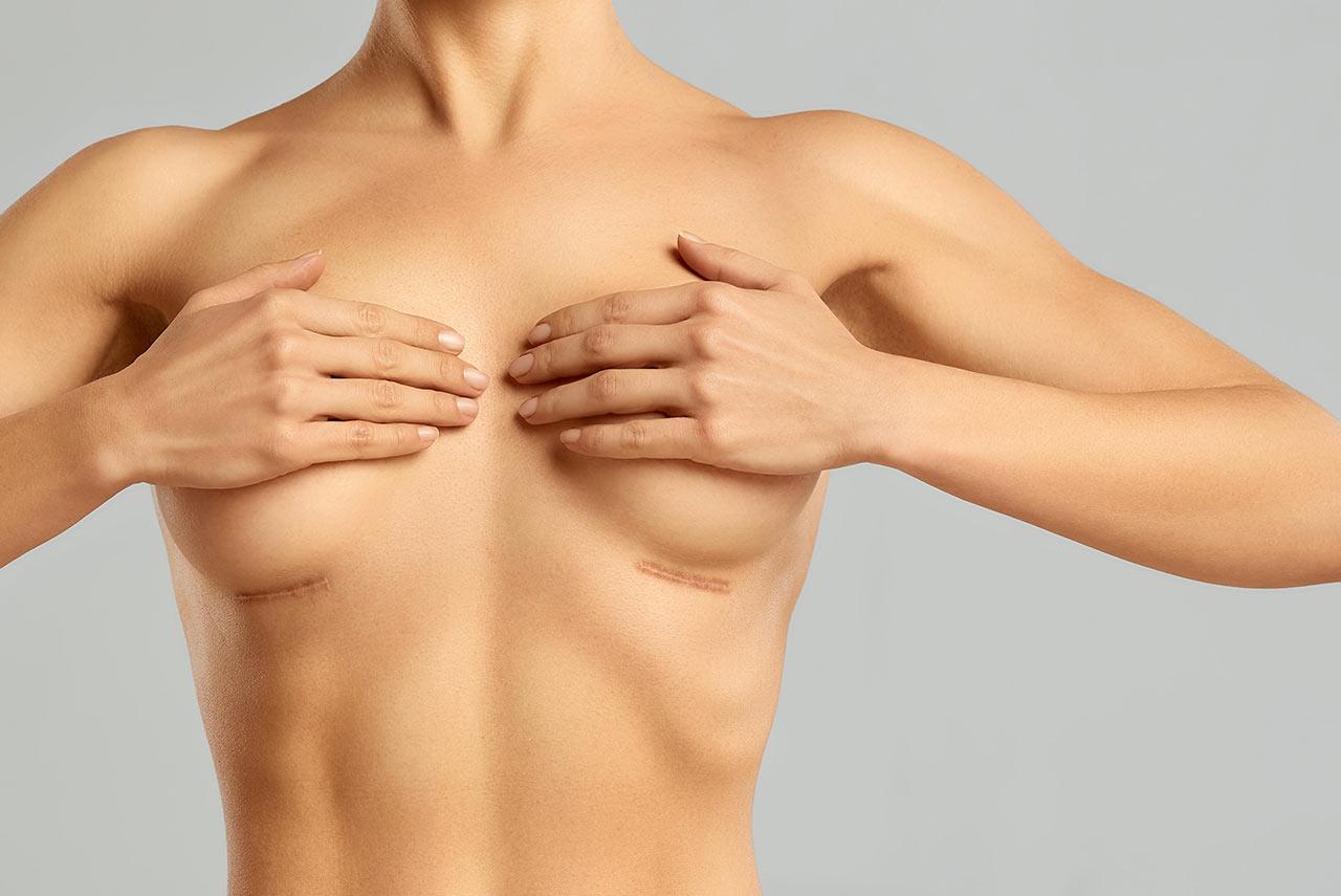 妻子應丈夫要求注射豐胸 手術失敗后被嫌棄離婚